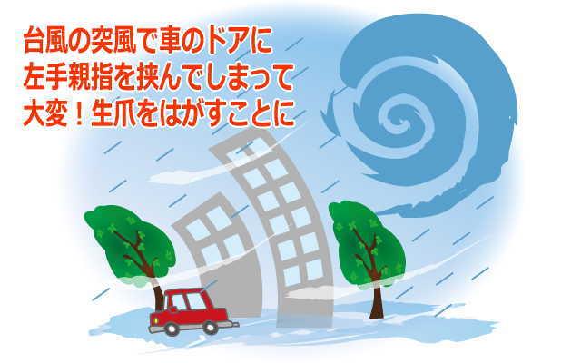 台風で生爪をはがす